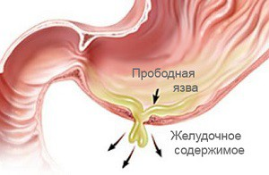 Лазерное лечение протрузии дисков позвоночника