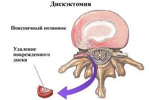 Защемление нерва шейного отдела лечение