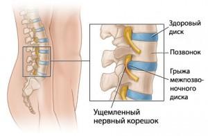 Поясничный остеохондроз вздутие живота