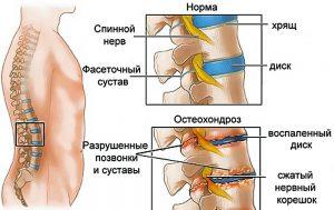 Боль под левым ребром сзади со спины
