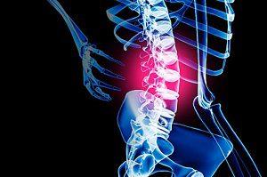 Болит спина снизу слева