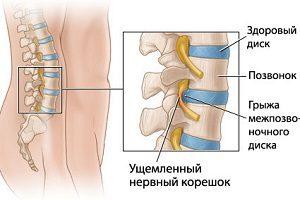 Судорога в ноге и боль в спине