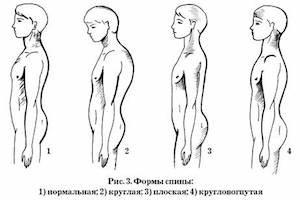 Боли при сколиозе грудного отдела позвоночника симптомы