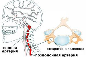 Остеохондроз и тромбофлебит сонной артерии