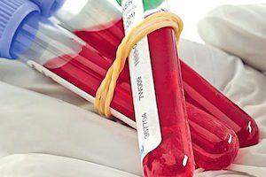 Что в анализе крови должно быть завышено при остеохондрозе