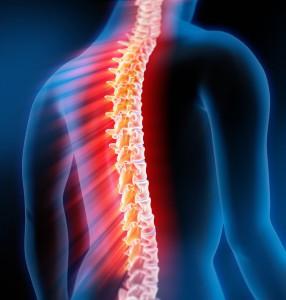 plastiri for spine