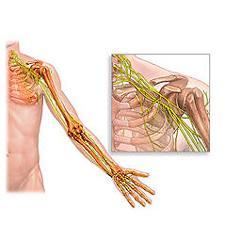 Стмптомы остеохондроза плеча
