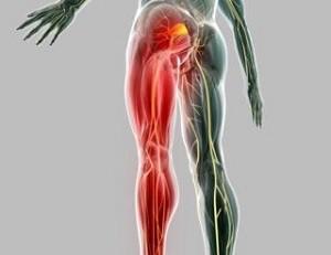 Удаление седалищного нерва