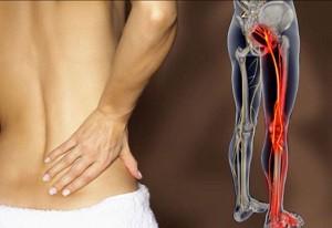 Последствия воспаления седалищного нерва