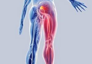 Болевой синдром при компрессии седалищного нерва