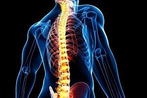 Что такое остеохондроз позвоночника