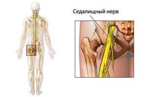Заболевания седалищного нерва