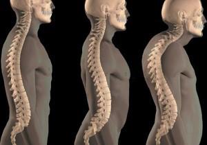 Причины, симптомы и лечение гиперкифоза грудного отдела позвоночника