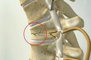 Причина компрессионного перелома позвонка