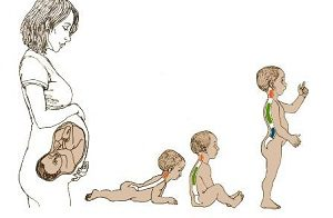 Причины возникновения лордоза у детей