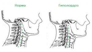 Гиполордоз шейного отдела