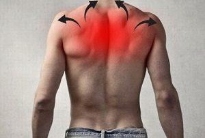 Боль в грудном отделе спины