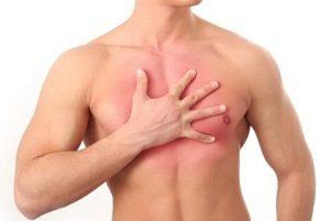 Циркулярная грыжа грудного отдела