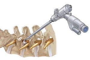 Операция по удалению грыжи в позвоночнике