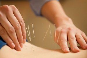 Безоперационное лечение междисковой грыжи