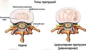 Дорсальная циркулярная протрузия