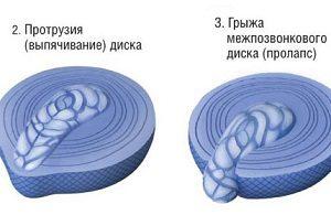 Начало развития межпозвонковой грыжи