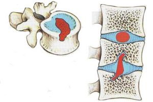 Грыжа Шморля грудного отдела