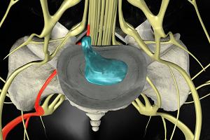 Симптомы дорсальной грыжи