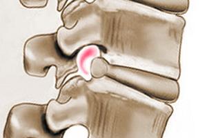 Дорзальная или задняя диффузная грыжа