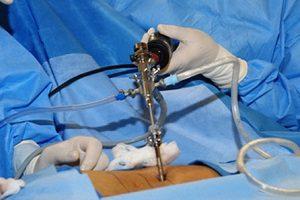 Эффективна ли операция по удалению грыжи
