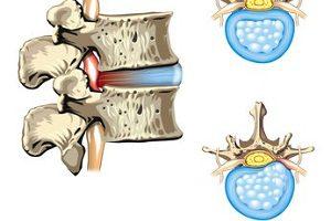 Болевой синдром при межпозвоночной грыже