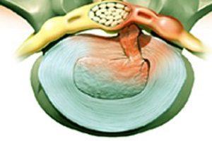 Симптомы обострения межпозвонковой грыжи