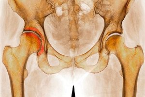 Ртроз правого тазобедренного сустава лечение самомассаж лучезапястного сустава и кисти руки