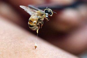 Лечение пчелами грыжи позвоночника