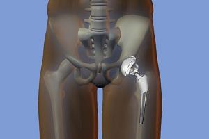 Искусственный тазобедренный сустав