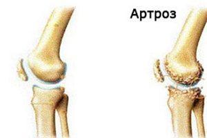 Тренажеры при гонартрозе коленного сустава