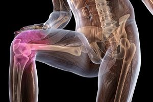 Артроз коленного сустава и спорт мышцы тазобедренного сустава
