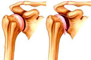 Что делать при артрозе плечевого сустава клиника вывиха плечевого сустава