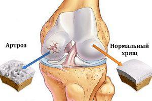 Острый артроз коленного сустава