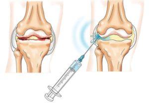 Блокада гиалуроновой кислотой при артрозе колена
