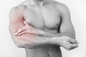 Разрывы мышц спины
