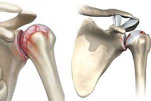 Артроз левого плечевого сустава