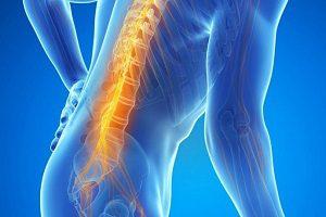 Виды отеков спинного мозга