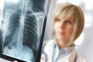 Как подготовиться к рентгену спины
