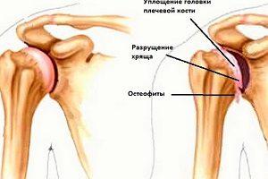 Стадии развития атроза плеча