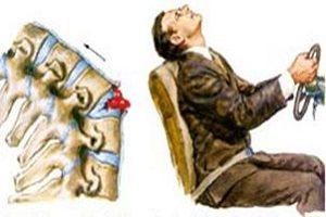 Причины переломов позвоночника