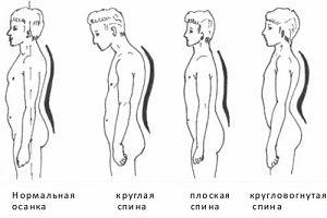 Что такое плоская спина?