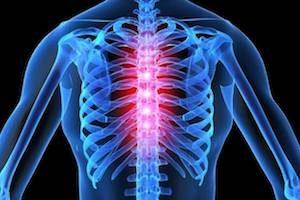 Пневмония осложненная заболеваниями позвоночника