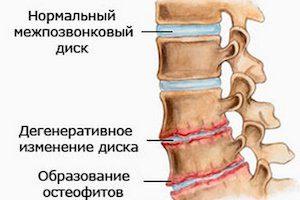 Как проявляется остеохондроз на рентгене
