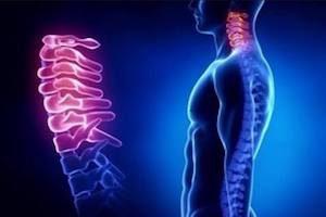 Влияние остеохондроза на кровообращение мозга